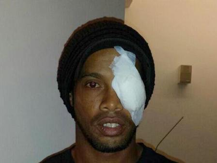 Ronaldinho-mostro-golpe-recibido-ante-Xolos