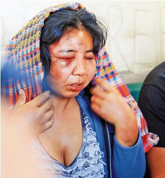 Mujer-denuncia-a-su-marido-por-brutal-golpiza