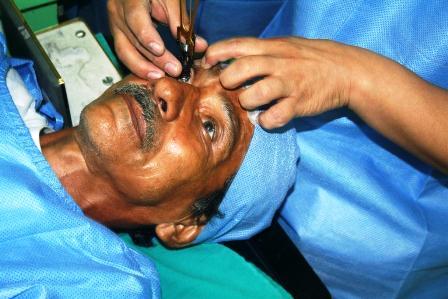 Operacion-gratuita-de-ojos-reinicia-esta-semana-