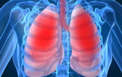 La-tuberculosis-sigue-latente-en-la-poblacion-y-faltan-politicas-de-prevencion