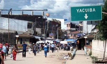 En-Yacuiba-estudian-un-caso-de-microcefalia-que-puede-estar-ligado-al-Zika