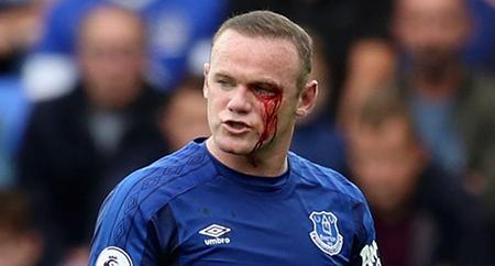Rooney-recibe-un-codazo-en-el-rostro