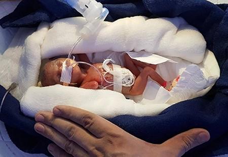 Bebe-que-nace-con-400-gramos-de-28-semanas-y-logra-sobrevivir-