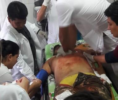 En-un-hecho-confuso-la-policia-asesina-a-un-hombre-en-la-localidad-de-El-Curichon-en-San-Matias
