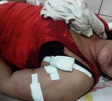 Mujer sobrevive a 9 puñaladas  y pareja intenta quitarse la vida