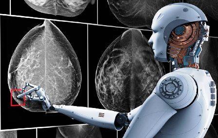 Sistema-de-IA-de-Google-contra-el-cancer-de-mama