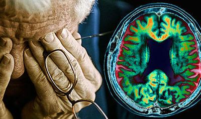 Nuevo fármaco revierte el deterioro cognitivo asociado a la edad 'de la noche a la mañana' y podría ayudar a curar Alzheimer o la demencia