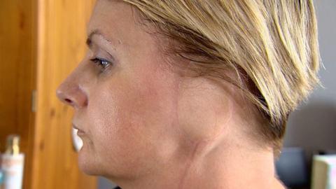 'Perdí una oreja por mi adicción al bronceado'
