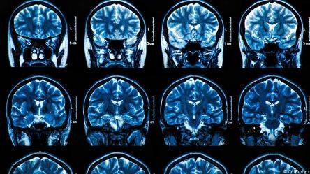 COVID-19-puede-causar-graves-danos-cerebrales,-incluso-en-pacientes-con-sintomas-leves