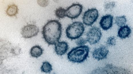 Nuevas imágenes revelan en detalle cómo infecta el coronavirus las células pulmonares