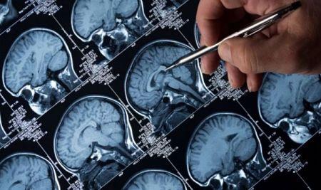 Encuentran un componente desconocido del cerebro que se asocia con la mayor gratificación