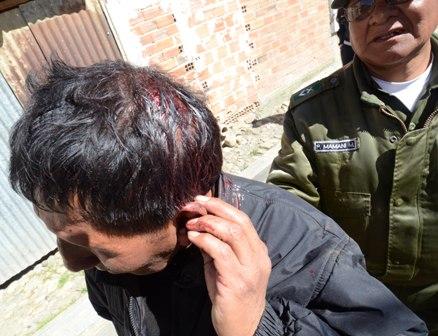 Choques-entre-vecinos-y-choferes-dejan-varios-heridos-en-La-Paz