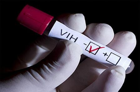 Descubren-una-molecula-que-destruye-las-celulas-infectadas-por-el-VIH