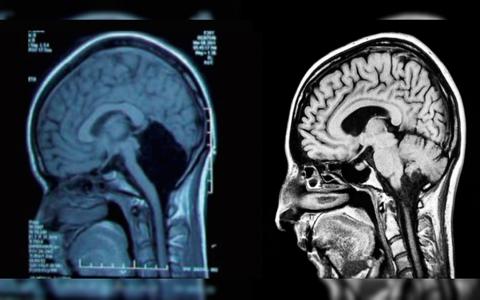 El-extrano-caso-de-la-mujer-sin-cerebelo-asombra-a-cientificos