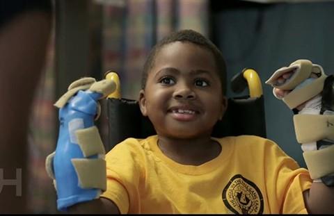 Zion,-el-primer-nino-del-mundo-en-recibir-un-trasplante-de-manos