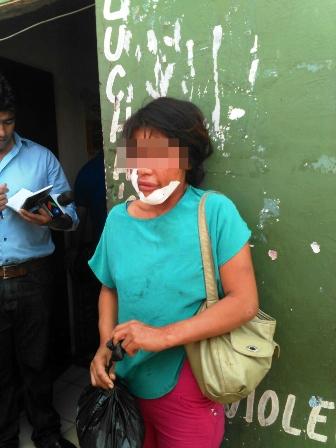 Mujer-denuncia-brutal-golpiza-de-su-marido