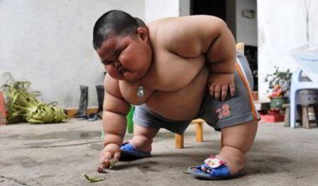 Alarmante-nivel-de-obesidad-infantil-