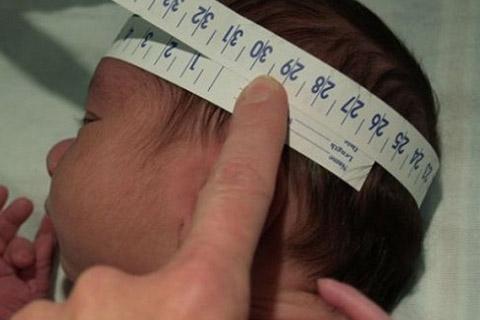 Suben-a-13-los-casos-de-microcefalia-por-zika-en-Santa-Cruz-