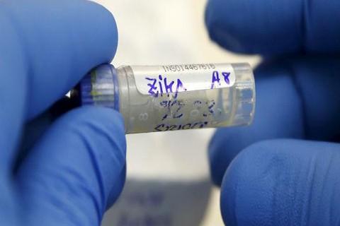 El-Zika-puede-permanecer-en-los-fluidos-hasta-dos-meses