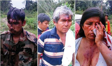 Disputa-por-tierras-dejan-16-heridos-en-Yapacani-