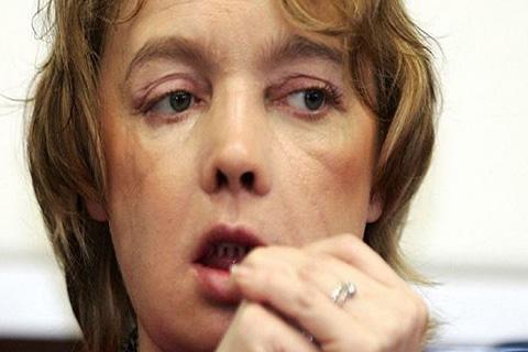 Fallecio-primera-paciente-con-rostro-trasplantado-en-el-mundo