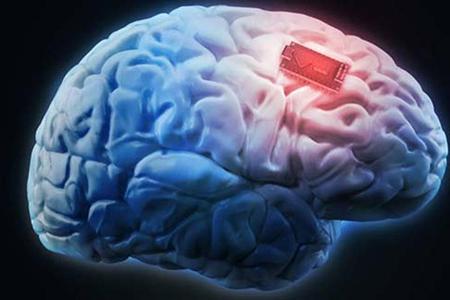 Logran-potenciar-la-memoria-con-un-implante-cerebral