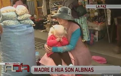 Madre-e-hija-albinas-reciben-lentes-y-agradecen-a-la-poblacion