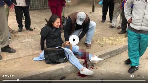 Accidente-de-motocicleta-deja-una-mujer-herida-