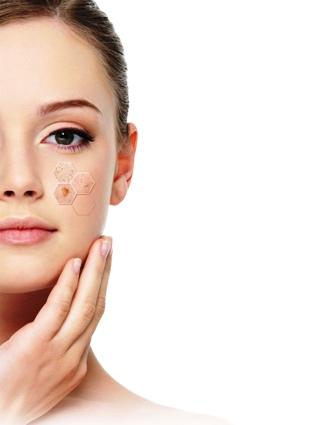 Elimine-las-manchas-en-la-piel-con-estos-tratamientos-caseros
