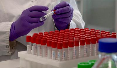 Chile-tambien-pausara-el-ensayo-de-la-vacuna-contra-el-coronavirus-de-Johnson-&-Johnson