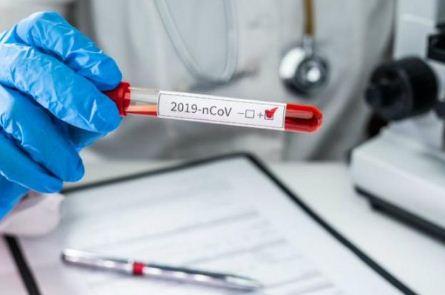 Bolivia-sumo-127-nuevos-casos-de-coronavirus-y-la-cifra-nacional-llega-a-1.802