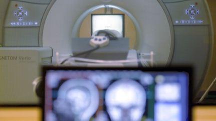Logran--borrar--los-recuerdos-de-miedo-y-aversion-con-estimulacion-transcraneal-del-cerebro