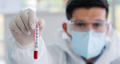 Martes-19-de-enero:-lo-que-necesita-saber-hoy-sobre-el-Coronavirus