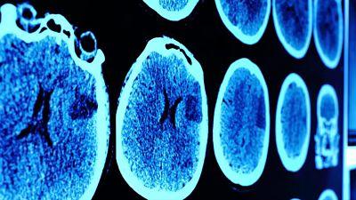 Un-hombre-afirma-que-perdio-la-capacidad-de-sentir-miedo-luego-de-que-le-extirparan-parte-del-cerebro